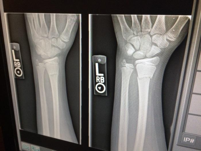 x-ray-1273382.jpg